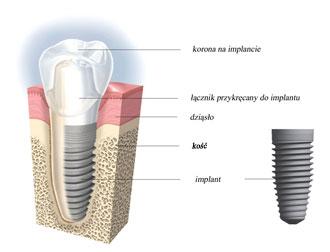 implantologia poznań